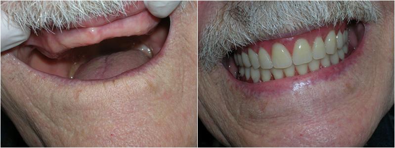 Implanty, protetyka, ortodoncja, stomatologia, dentysta, Warszawa, Zacisze, Targówek